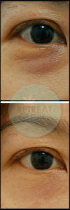 Fillers For Tired Looking Eyes