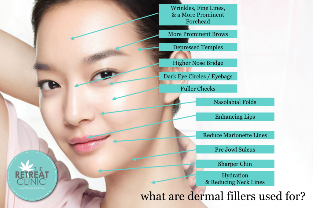 Dermal fillers can be used for various indications