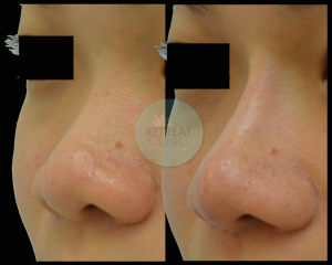 A non surgical nose job is instant & has minimal to zero downtime