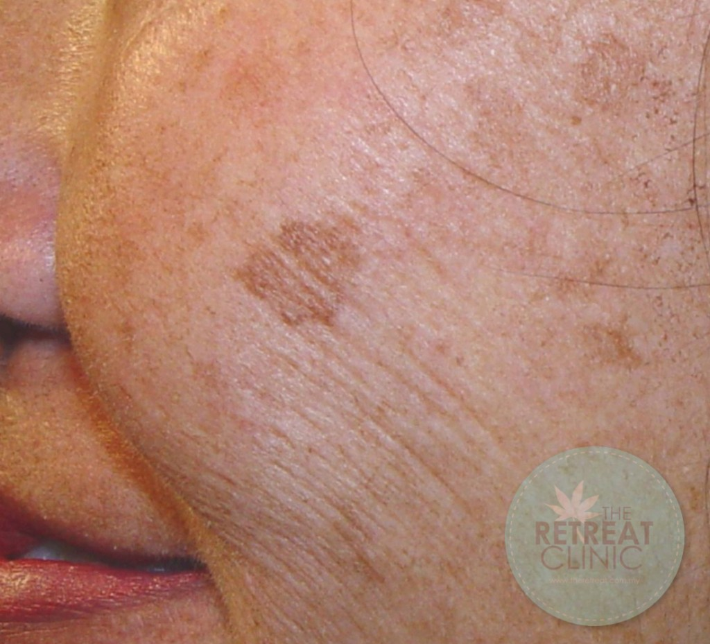 Age Spots - Those brown spots that appear all of a sudden ...