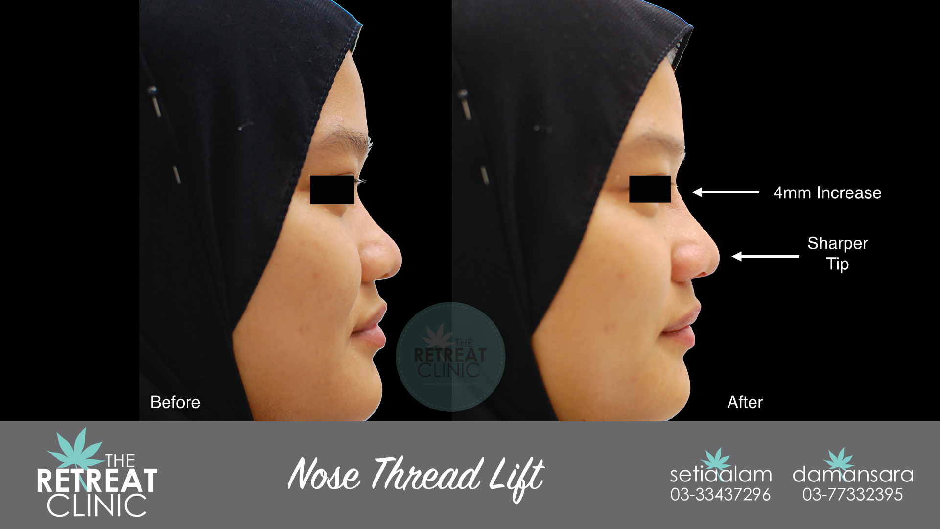 Nose Thread Lift - Fast, Effective, Safe! - The Retreat Clinic