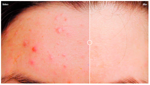 Acne Before and after 3 treatments with Ellipse