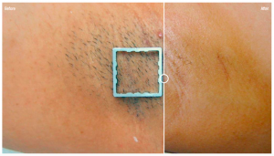 Hair removal Hair removal under arm, before and after 5 treatments with Ellipse