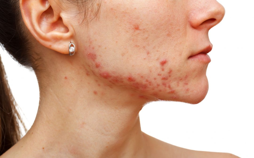 Skin care routine that worsens your acne instead of helping